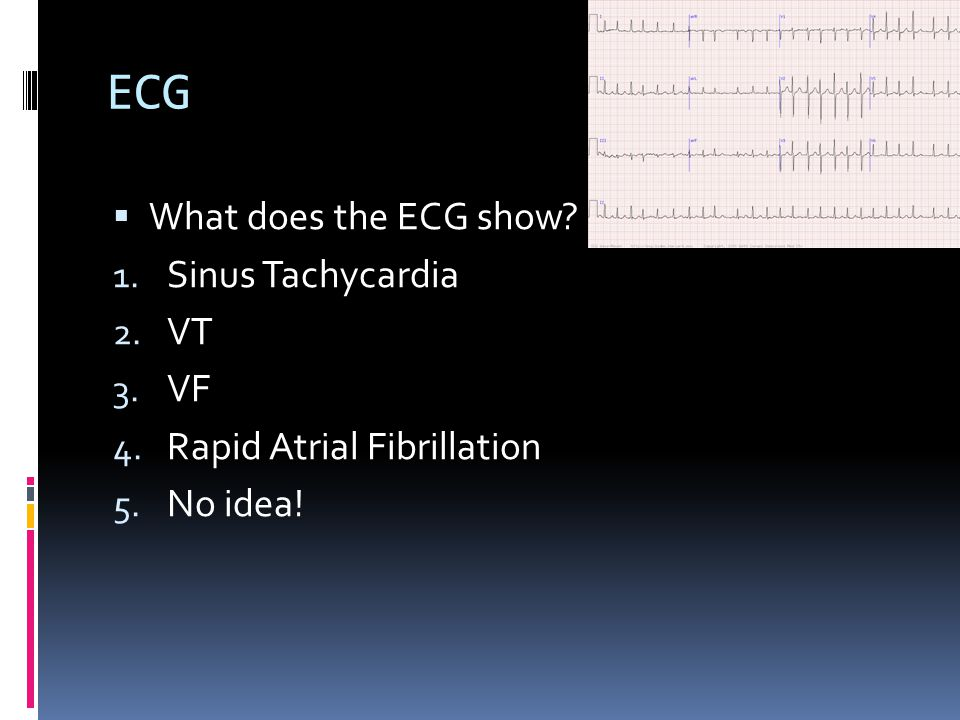 ECG  What does the ECG show. 1. Sinus Tachycardia 2.