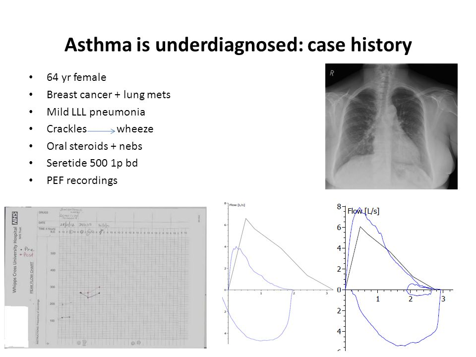 Asthma is underdiagnosed: case history 64 yr female Breast cancer + lung mets Mild LLL pneumonia Crackles wheeze Oral steroids + nebs Seretide 500 1p bd PEF recordings