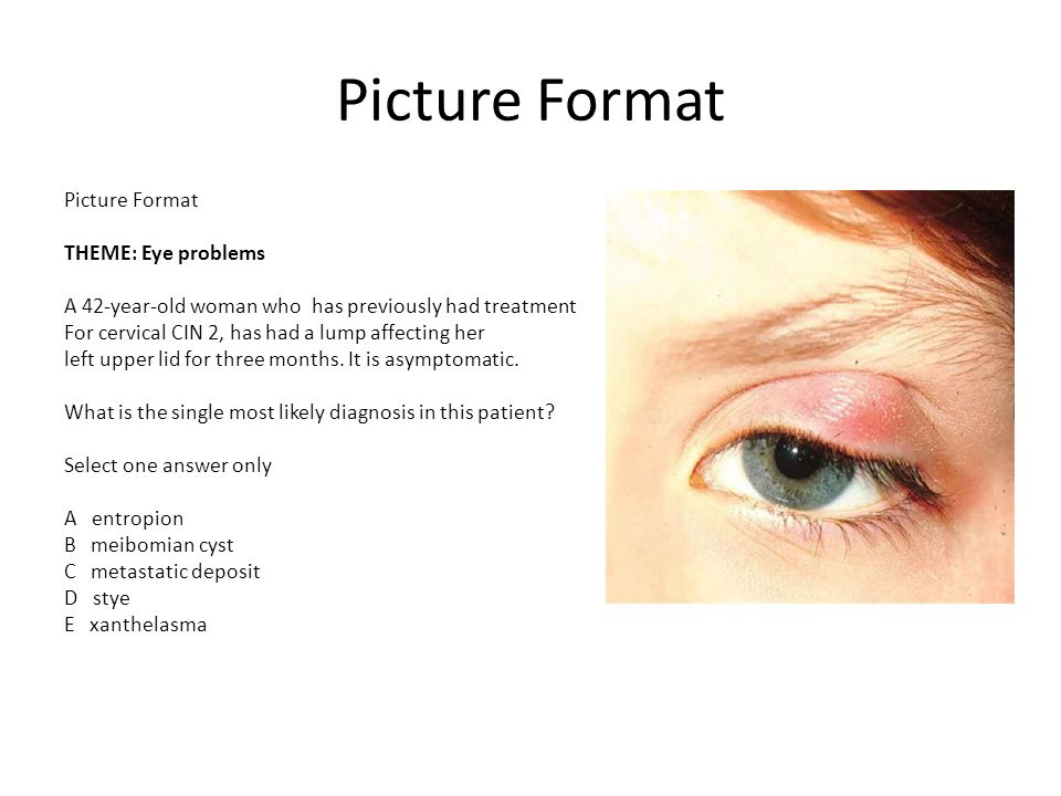 Picture Format THEME: Eye problems A 42-year-old woman who has previously had treatment For cervical CIN 2, has had a lump affecting her left upper lid for three months.