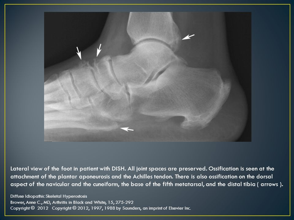 Lateral view of the foot in patient with DISH. All joint spaces are preserved. Ossification is seen at the attachment of the plantar aponeurosis and t