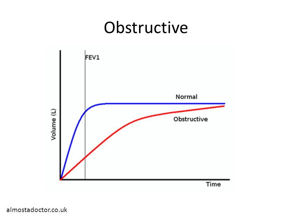 Obstructive almostadoctor.co.uk