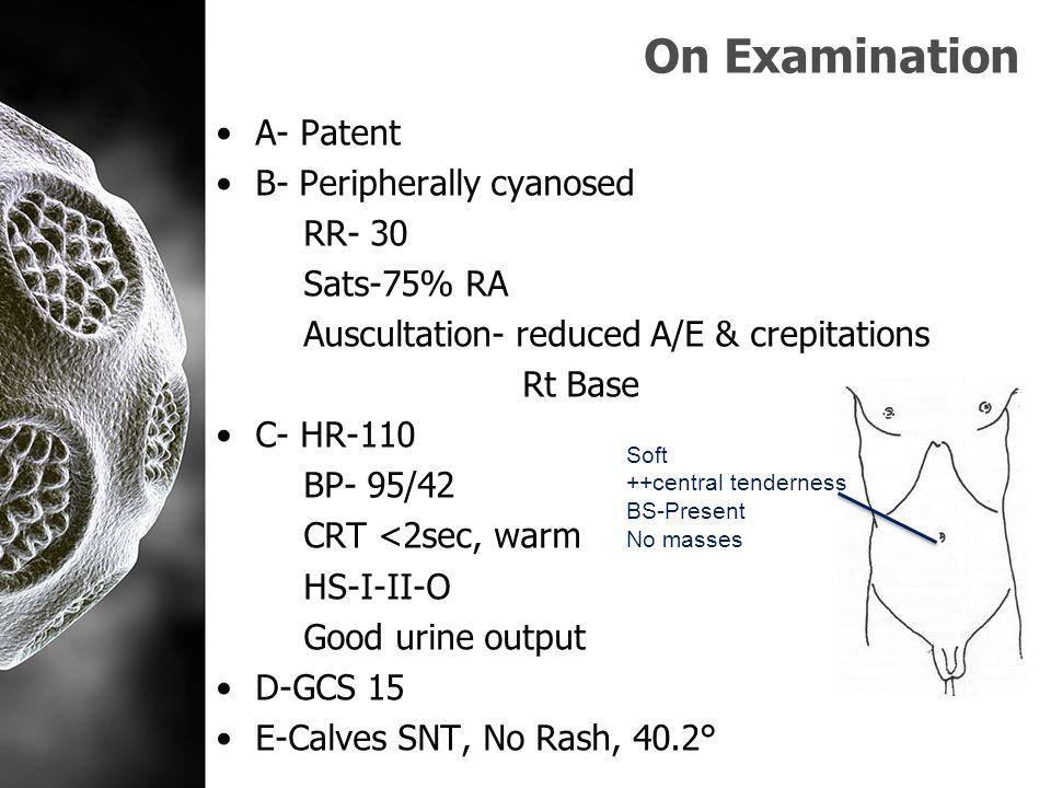 Investigations ABG on 35%- pH-7.47 p02-11.66 pCO2- 3.65 HCO3- 22.5 Lactate-2.01 ECG- Sinus tachycardia