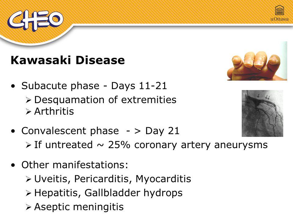 Kawasaki Disease Subacute phase - Days 11-21  Desquamation of extremities  Arthritis Convalescent phase - > Day 21  If untreated ~ 25% coronary artery aneurysms Other manifestations:  Uveitis, Pericarditis, Myocarditis  Hepatitis, Gallbladder hydrops  Aseptic meningitis