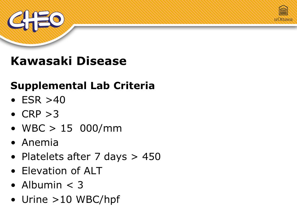 Kawasaki Disease Supplemental Lab Criteria ESR >40 CRP >3 WBC > 15 000/mm Anemia Platelets after 7 days > 450 Elevation of ALT Albumin < 3 Urine >10 WBC/hpf