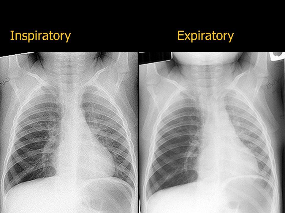 Inspiratory Expiratory