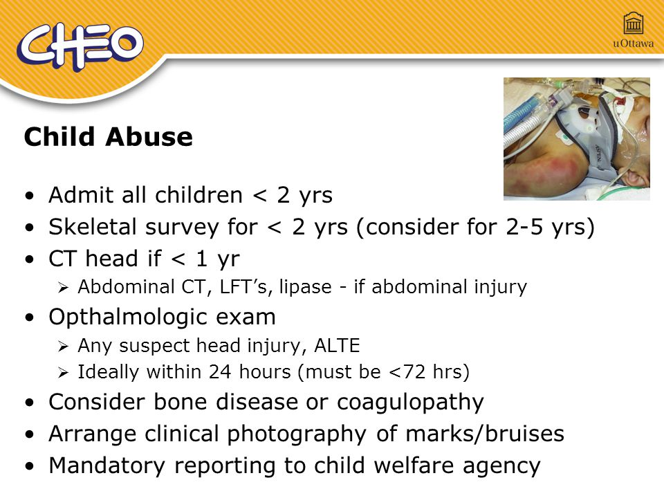 Child Abuse Admit all children < 2 yrs Skeletal survey for < 2 yrs (consider for 2-5 yrs) CT head if < 1 yr  Abdominal CT, LFT's, lipase - if abdominal injury Opthalmologic exam  Any suspect head injury, ALTE  Ideally within 24 hours (must be <72 hrs) Consider bone disease or coagulopathy Arrange clinical photography of marks/bruises Mandatory reporting to child welfare agency