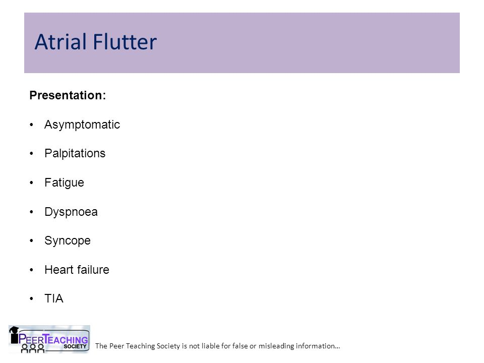 The Peer Teaching Society is not liable for false or misleading information… Atrial Flutter Presentation: Asymptomatic Palpitations Fatigue Dyspnoea S