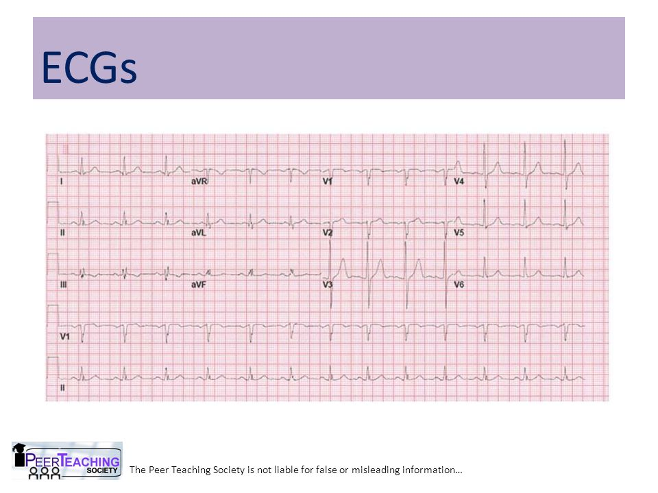 The Peer Teaching Society is not liable for false or misleading information… Sinus Tachycardia Treatment: Treat underlying cause