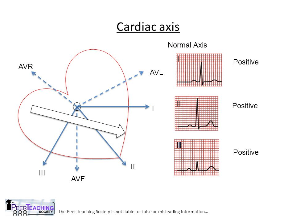 Cardiac axis The Peer Teaching Society is not liable for false or misleading information… I II III AVL AVR AVF Right Axis Deviation Negative Positive