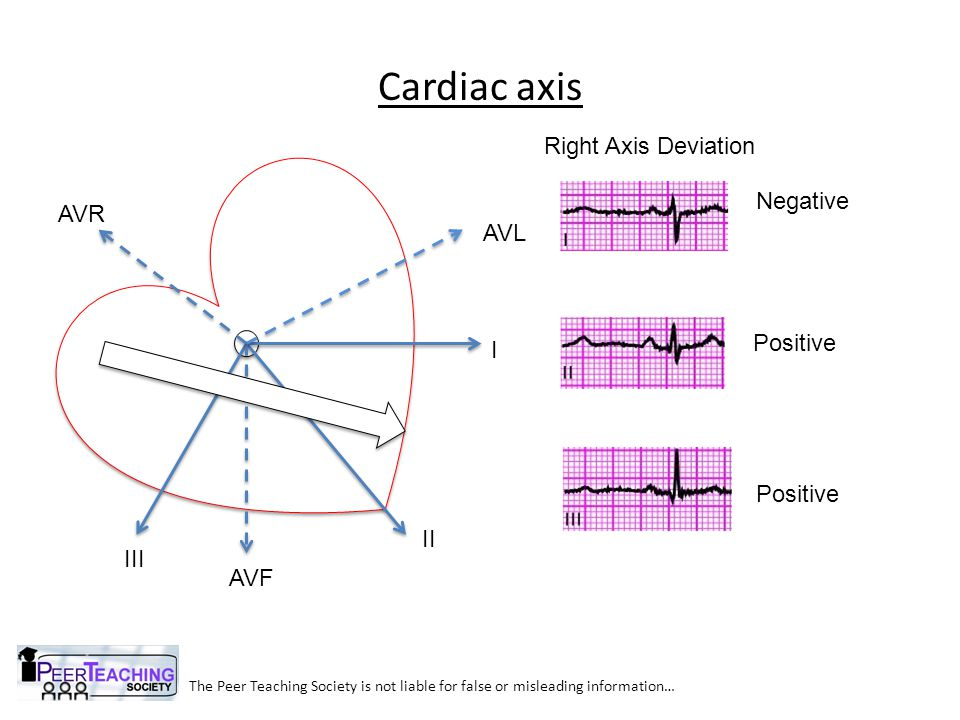 The Peer Teaching Society is not liable for false or misleading information… SVT Atrio-ventricular nodal re-entry tachycardia Most common Seen in people aged 20-30 Electrical short circuit in centre of the heart Usually no underlying cause