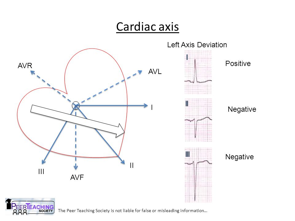 Cardiac axis The Peer Teaching Society is not liable for false or misleading information… I II III AVL AVR AVF Left Axis Deviation Positive Negative