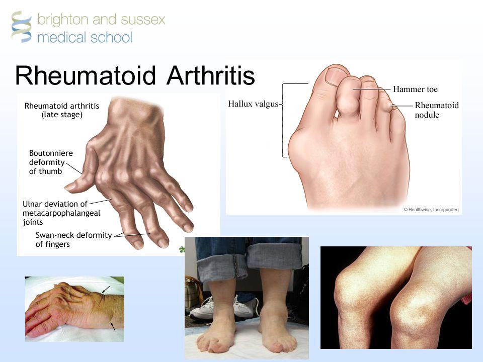 17 Rheumatoid Arthritis