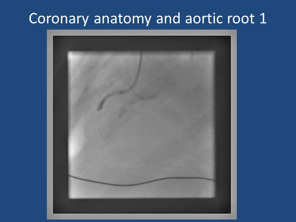 Coronary anatomy and aortic root 1