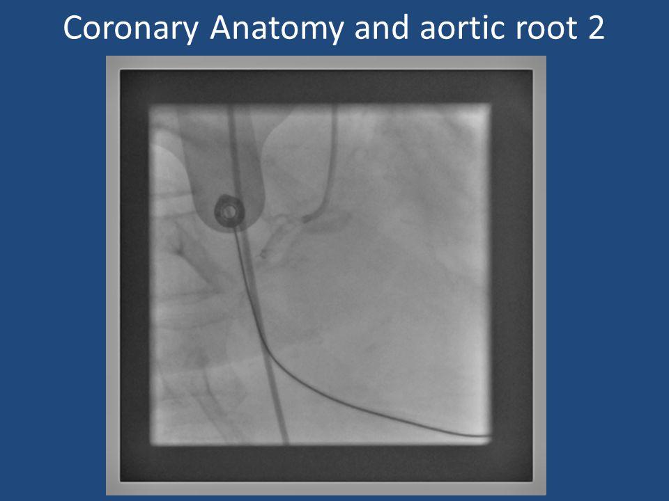 Coronary Anatomy and aortic root 2