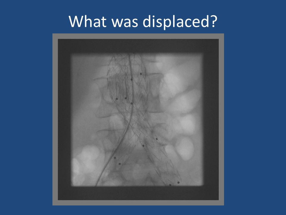 What was displaced