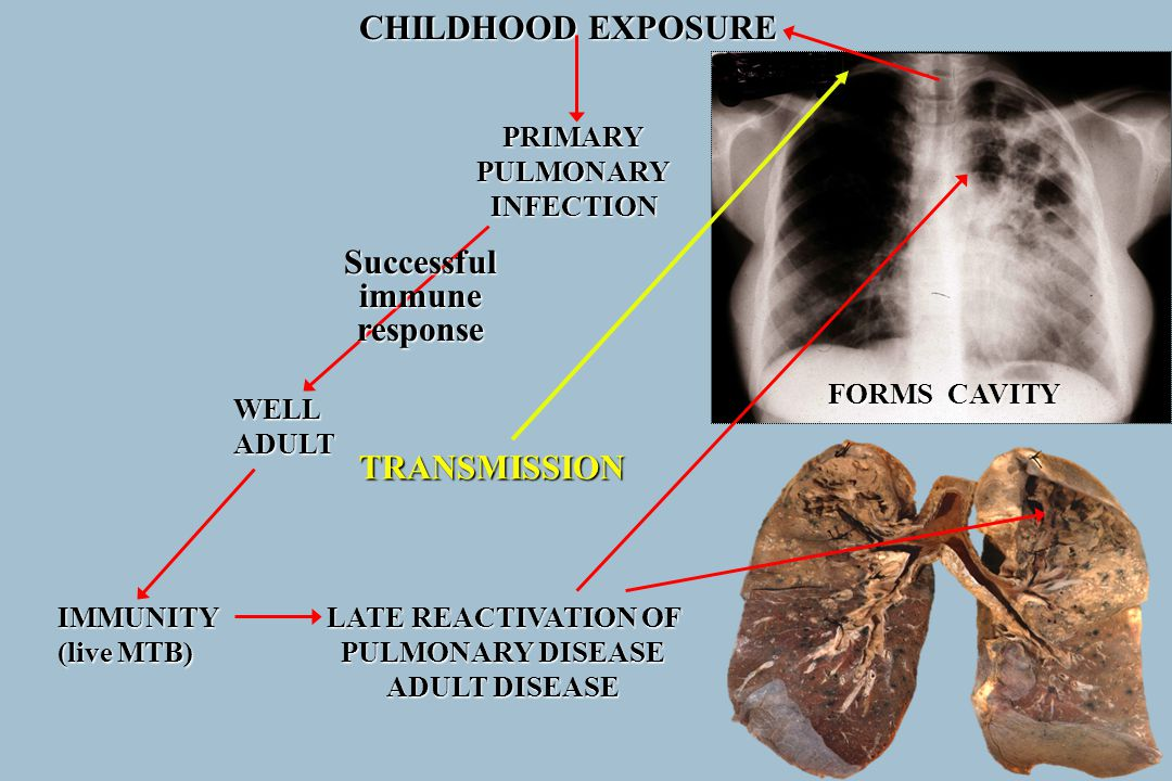 CHILDHOOD EXPOSURE PRIMARYPULMONARYINFECTION WELLADULT IMMUNITY (live MTB) Successfulimmuneresponse LATE REACTIVATION OF PULMONARY DISEASE ADULT DISEA