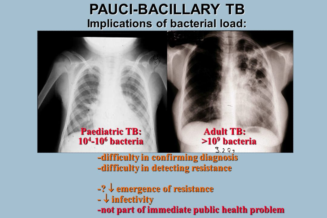 Paediatric TB: Adult TB: Paediatric TB: Adult TB: 10 4 -10 6 bacteria >10 9 bacteria 10 4 -10 6 bacteria >10 9 bacteria -difficulty in confirming diag