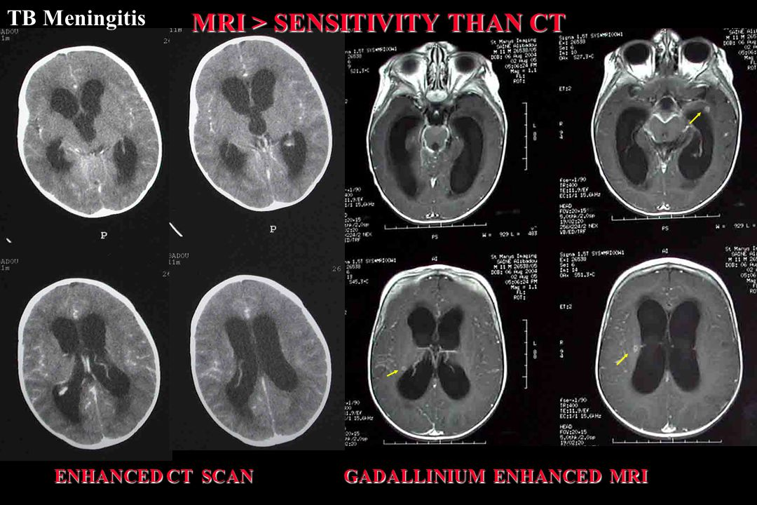 ENHANCED CT SCAN GADALLINIUM ENHANCED MRI ENHANCED CT SCAN GADALLINIUM ENHANCED MRI MRI > SENSITIVITY THAN CT TB Meningitis