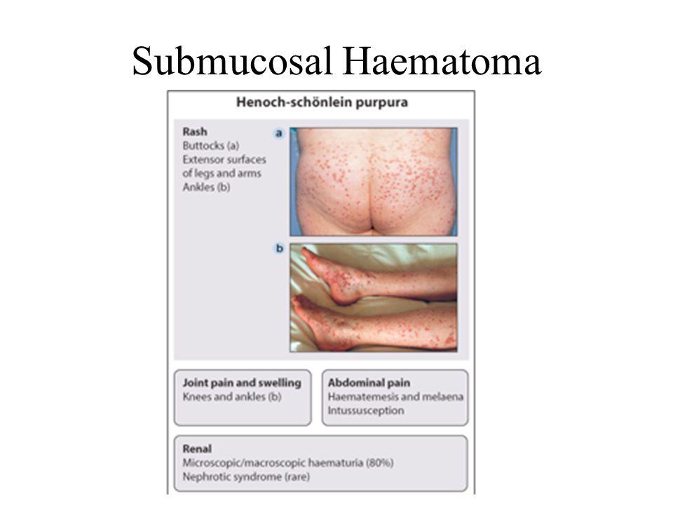 Submucosal Haematoma