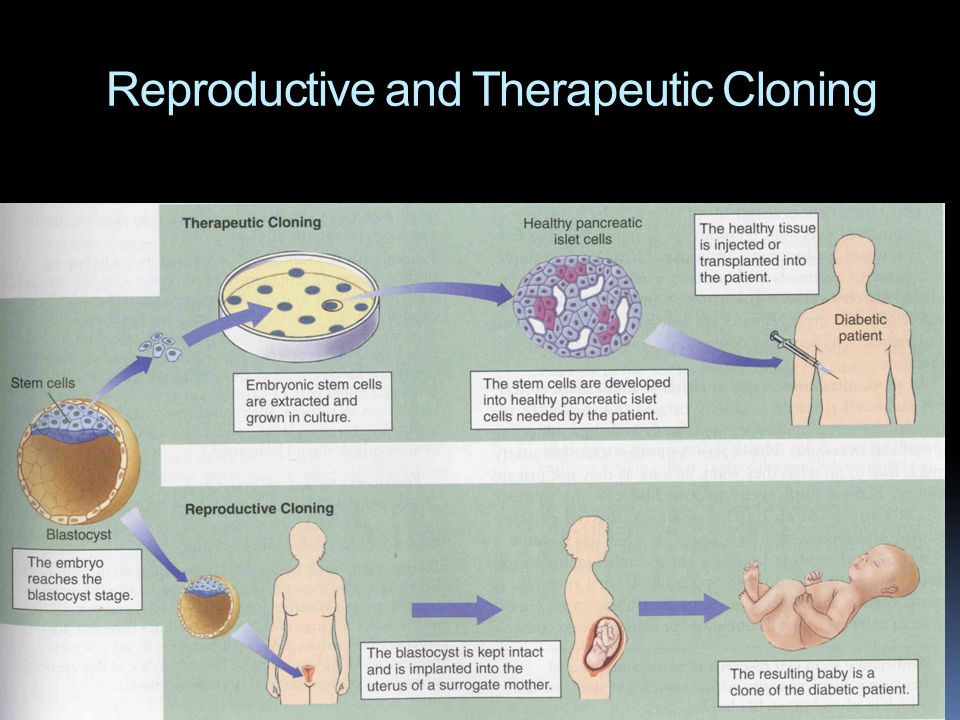 Reproductive and Therapeutic Cloning