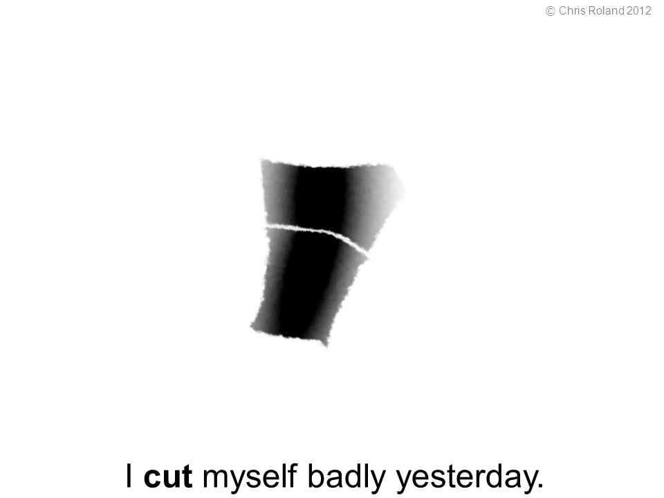 I cut myself badly yesterday. © Chris Roland 2012