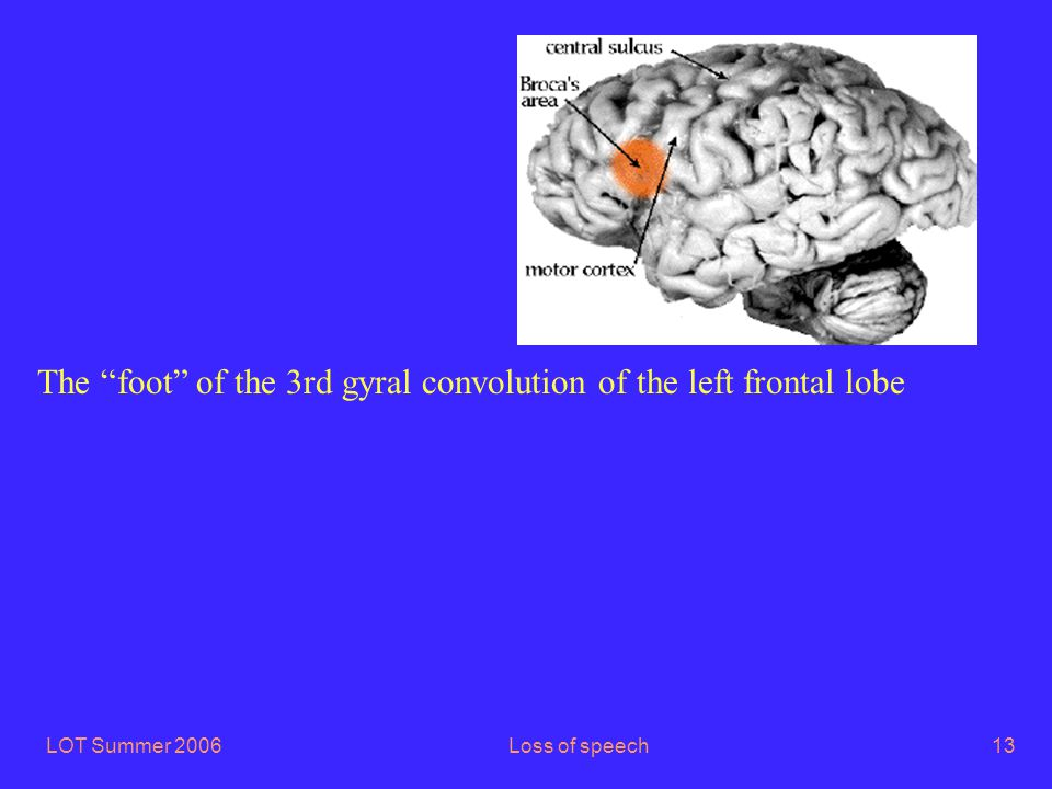 LOT Summer 2006Loss of speech13 The foot of the 3rd gyral convolution of the left frontal lobe