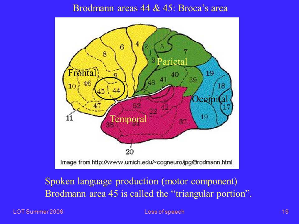 LOT Summer 2006Loss of speech19 Brodmann areas 44 & 45: Broca's area Frontal Parietal Occipital Temporal Spoken language production (motor component) Brodmann area 45 is called the triangular portion .
