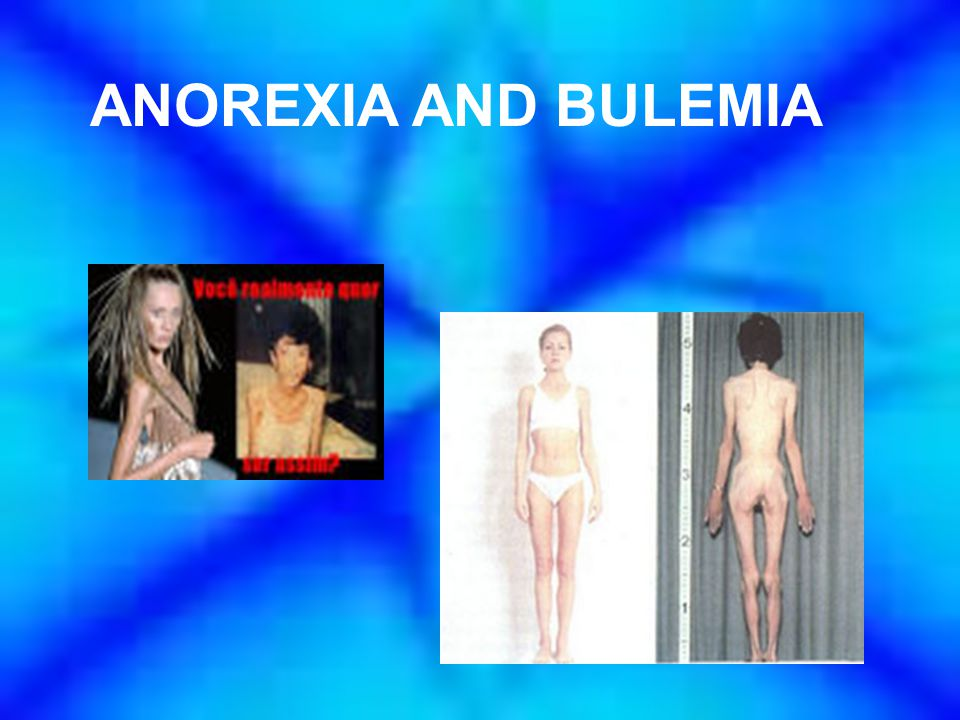 Warning signs of Bulimia Evidence of binge-eating, including disappearance of large amounts of food in short periods of time or the existence of wrappers and containers indicating the consumption of large amounts of food Evidence of purging behaviors, including frequent trips to the bathroom after meals, signs and/or smells of vomiting, presence of wrappers or packages of laxatives and diuretics Excessive, rigid exercise regimen despite weather, fatigue, illness, and injury, the need to burn off calories taken in Unusual swelling of the cheeks or jaw area Calluses on the back of the hands and knuckles from self-induced vomiting Discoloration, staining of the teeth Creation of complex lifestyle schedules or rituals to make time for binge- and-purge sessions Withdrawal from usual friends and activities In general, behaviors and altitudes indicating that weight loss, dieting, and control of food are becoming primary concerns