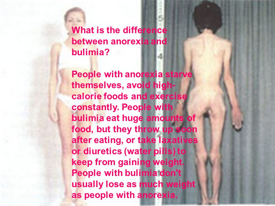 What is the difference between anorexia and bulimia.