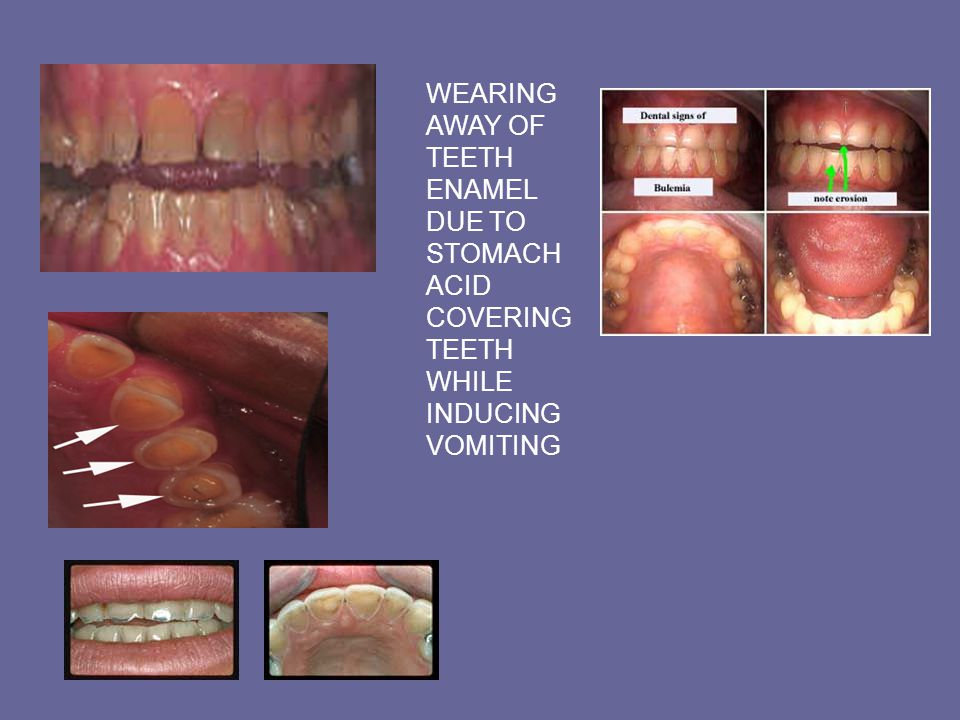 WEARING AWAY OF TEETH ENAMEL DUE TO STOMACH ACID COVERING TEETH WHILE INDUCING VOMITING