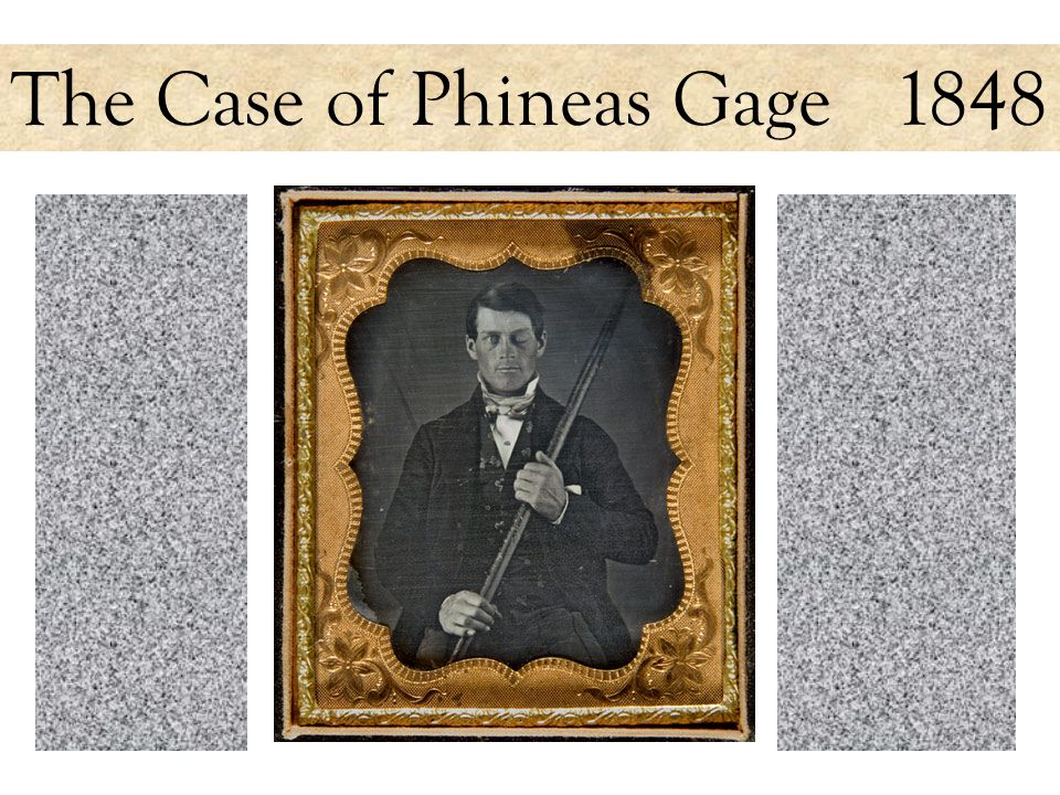 The Case of Phineas Gage 1848