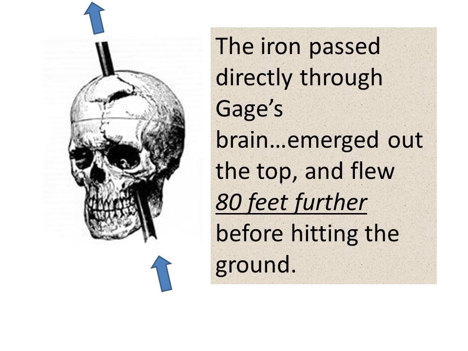 The iron passed directly through Gage's brain…emerged out the top, and flew 80 feet further before hitting the ground.