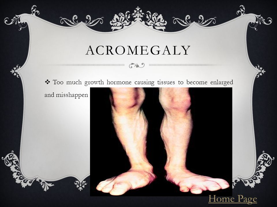 ACROMEGALY  Too much growth hormone causing tissues to become enlarged and misshappen Home Page