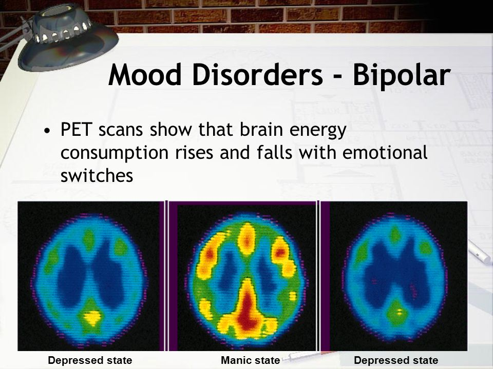 Mood Disorders - Bipolar PET scans show that brain energy consumption rises and falls with emotional switches Depressed stateManic stateDepressed state