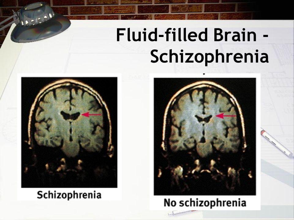 Fluid-filled Brain - Schizophrenia