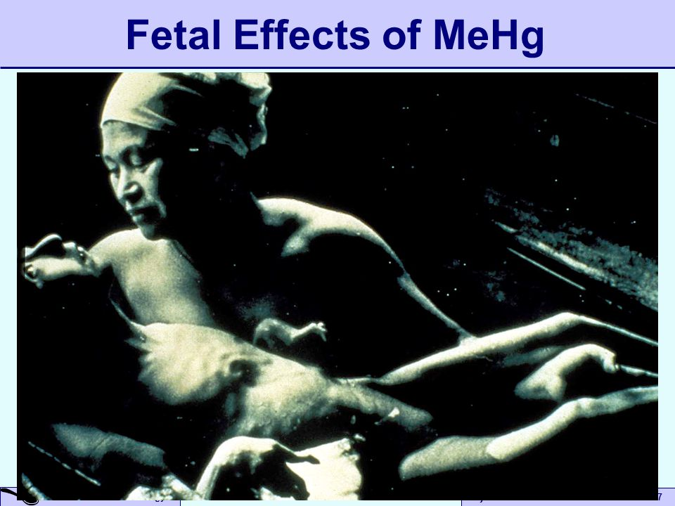 A Small Dose of Toxicology Beyond Risk Assessment to Prec – 09/19/07 Fetal Effects of MeHg