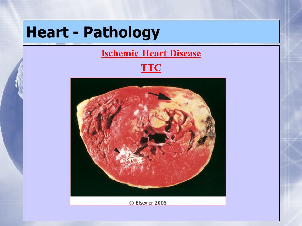 Heart - Pathology Ischemic Heart Disease TTC Ischemic Heart Disease TTC