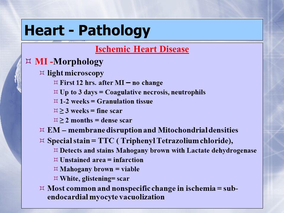 Heart - Pathology Ischemic Heart Disease  MI -Morphology  light microscopy  First 12 hrs.