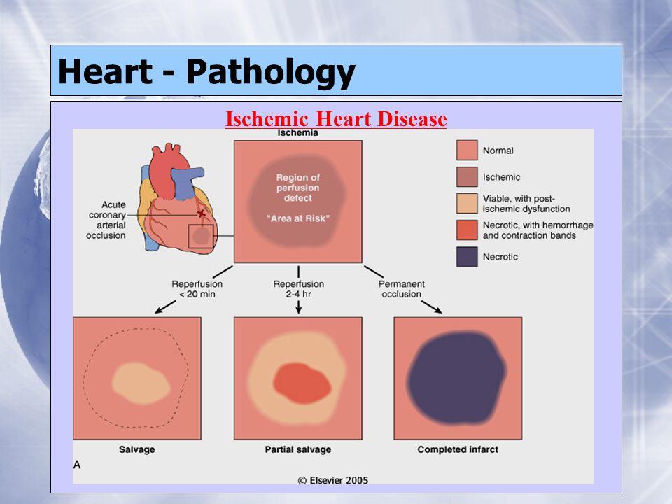 Heart - Pathology Ischemic Heart Disease