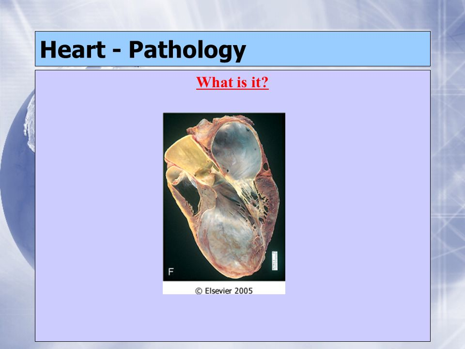 Heart - Pathology What is it?