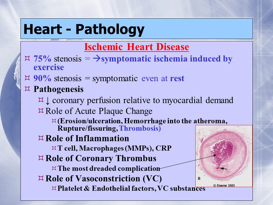 Heart - Pathology Ischemic Heart Disease  75% stenosis =  symptomatic ischemia induced by exercise  90% stenosis = symptomatic even at rest  Patho