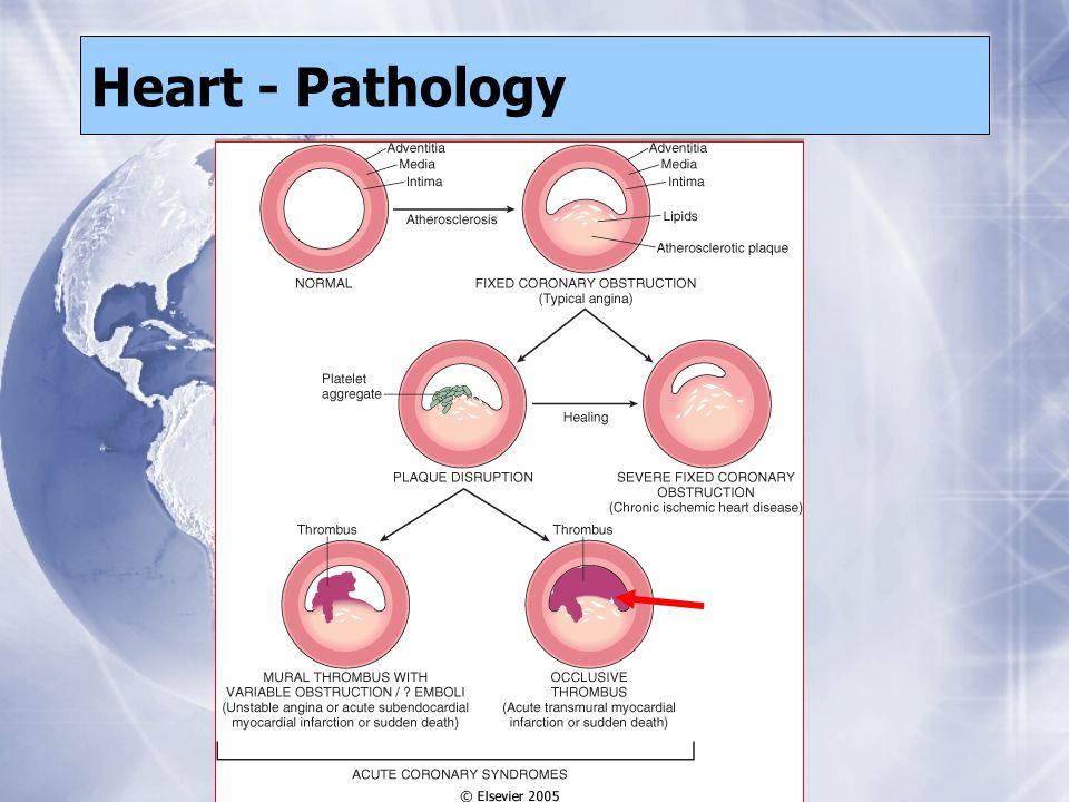 Heart - Pathology
