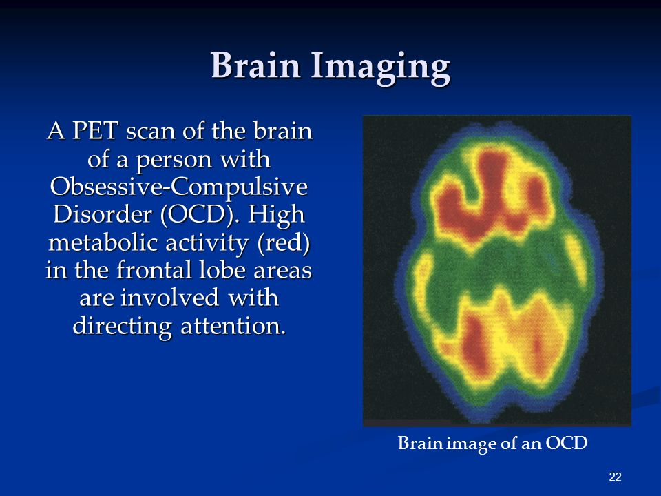 22 A PET scan of the brain of a person with Obsessive-Compulsive Disorder (OCD).