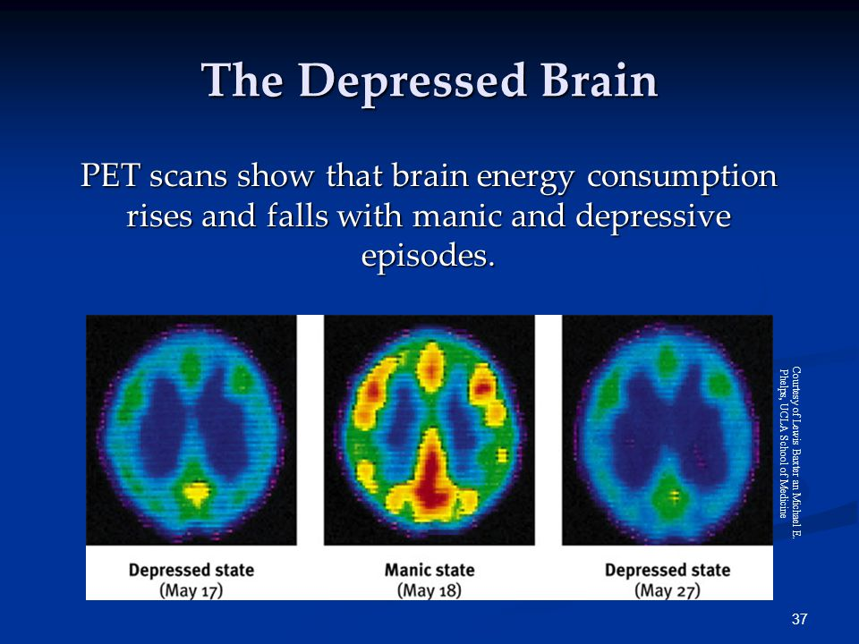 37 The Depressed Brain PET scans show that brain energy consumption rises and falls with manic and depressive episodes.