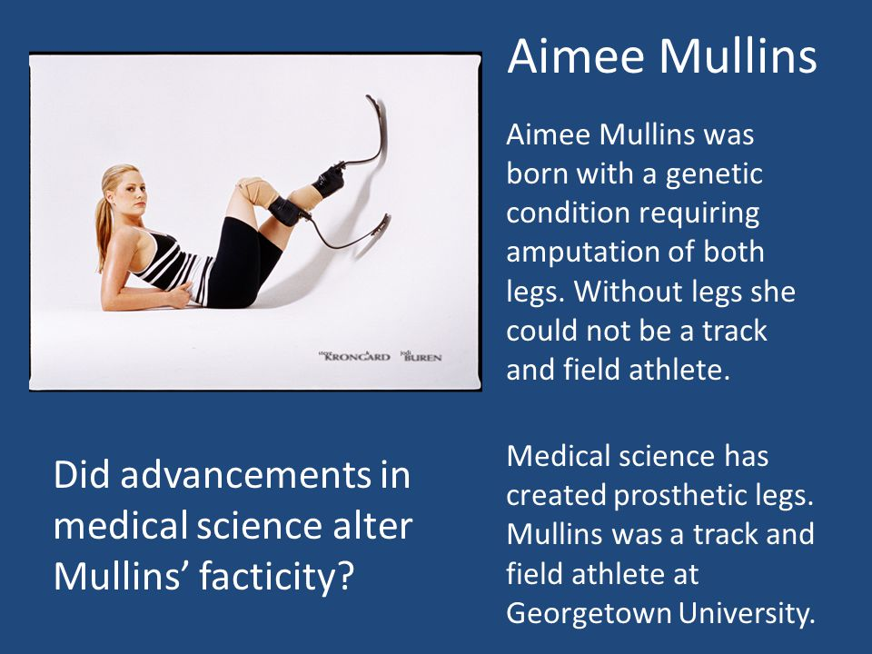 Aimee Mullins Aimee Mullins was born with a genetic condition requiring amputation of both legs.