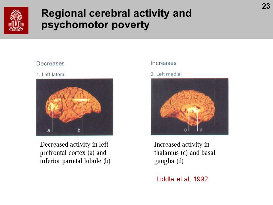 23 Regional cerebral activity and psychomotor poverty Liddle et al, 1992