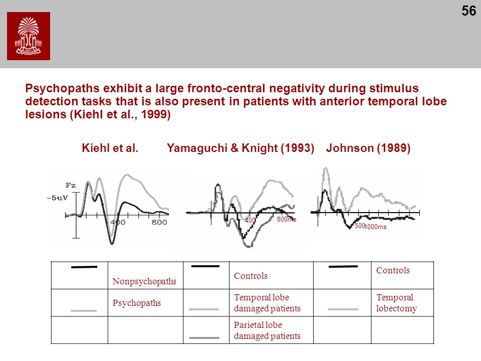 56 Psychopaths exhibit a large fronto-central negativity during stimulus detection tasks that is also present in patients with anterior temporal lobe lesions (Kiehl et al., 1999) Kiehl et al.