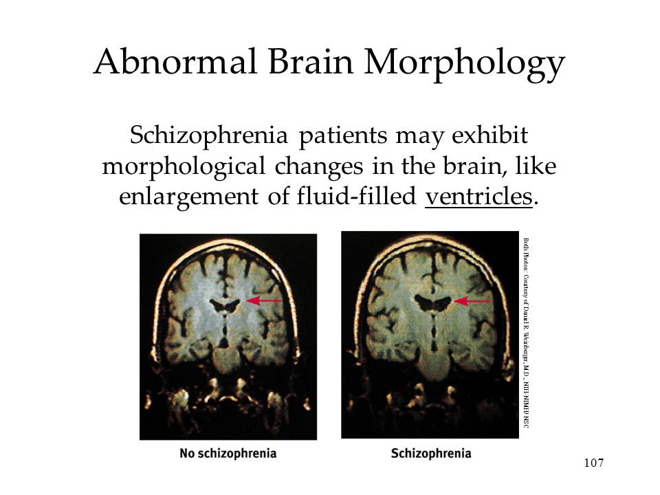 107 Abnormal Brain Morphology Schizophrenia patients may exhibit morphological changes in the brain, like enlargement of fluid-filled ventricles. Both