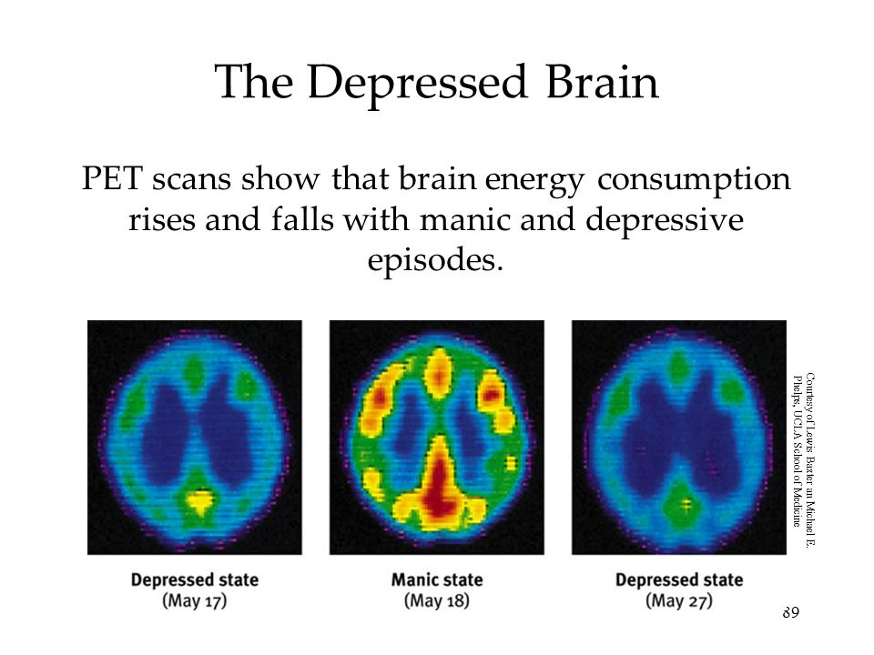 89 The Depressed Brain PET scans show that brain energy consumption rises and falls with manic and depressive episodes. Courtesy of Lewis Baxter an Mi