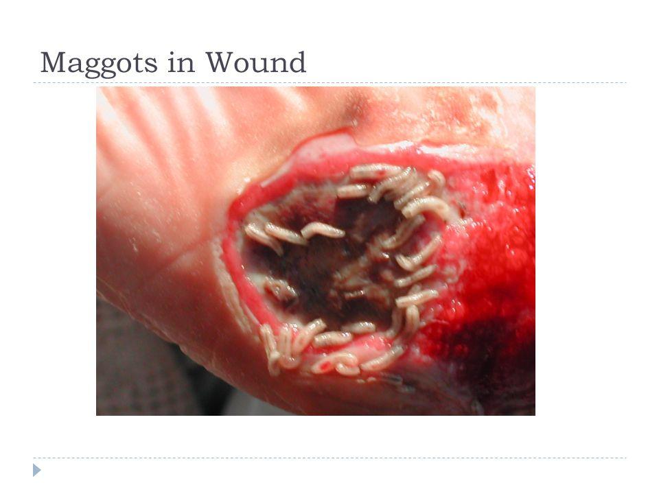Maggots in Wound